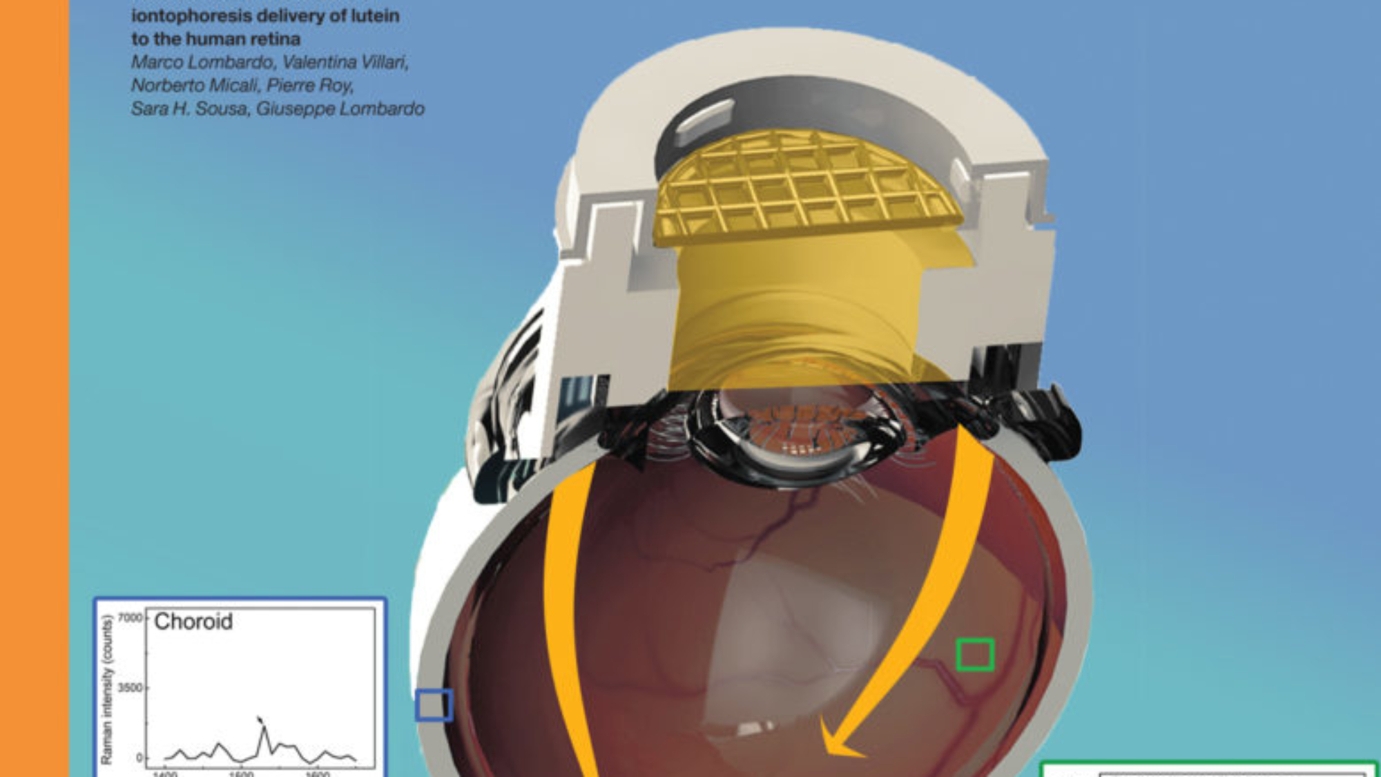 Front Cover: Assessment of trans-scleral iontophoresis delivery